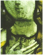 Fig. 33. (A) Mechanically cleaned half of the face. (B) Uncleaned half                             of face.